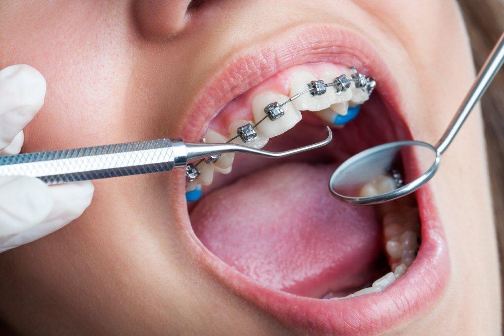 orthodontiste à Paris